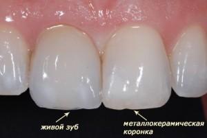 Протезирование зубов металлокерамикой.Стоматологический туризм